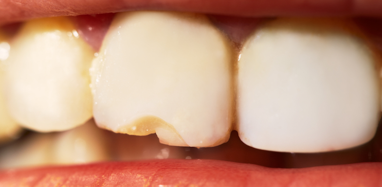 Chipped Tooth Repair | AZDentist.com