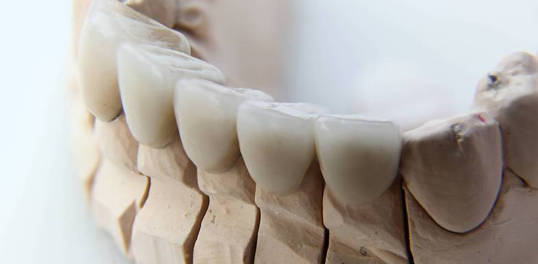 Dental Crown | AZDentist.com