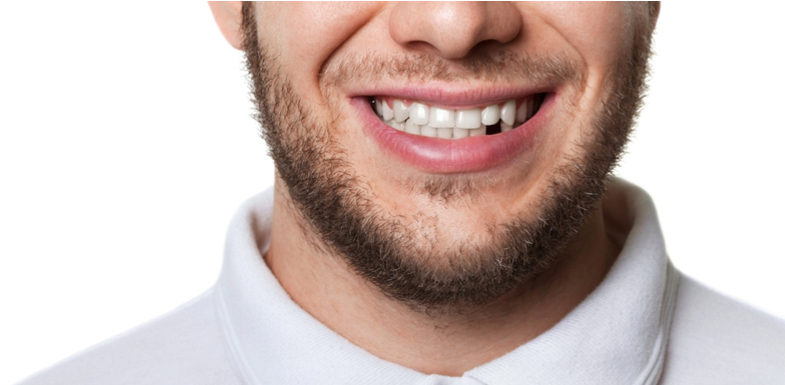 Are You Missing Teeth? What To Do | AZDentist.com