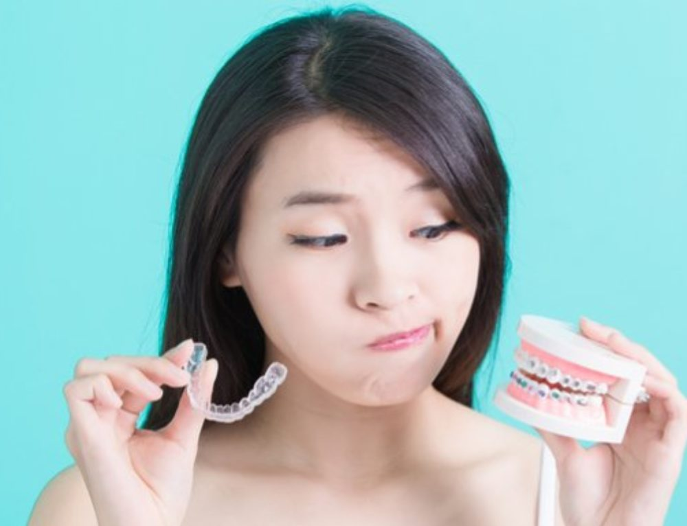 Invisalign Vs. Braces — What's Better For You?
