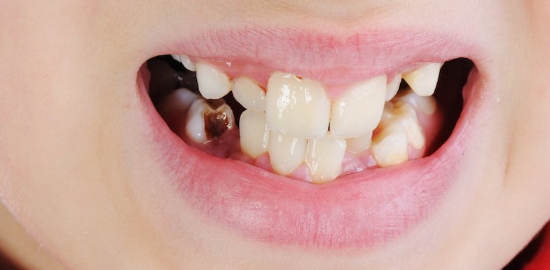Tooth Decay | AZDentist.com
