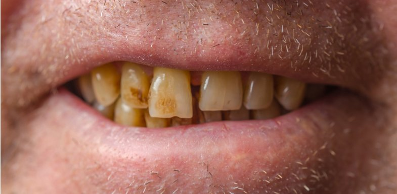 Dark Teeth, or Tooth Discoloration | AZDentist.com