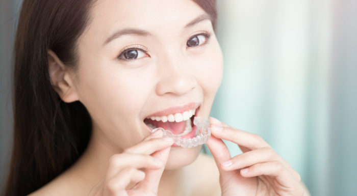 How To Clean Invisalign Retainers: 11 Of The Best Tips | AZDentist.com