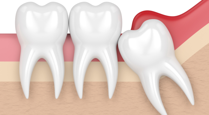 What To Expect With Wisdom Tooth Extraction Recovery: 5 FAQs | AZ Dentist